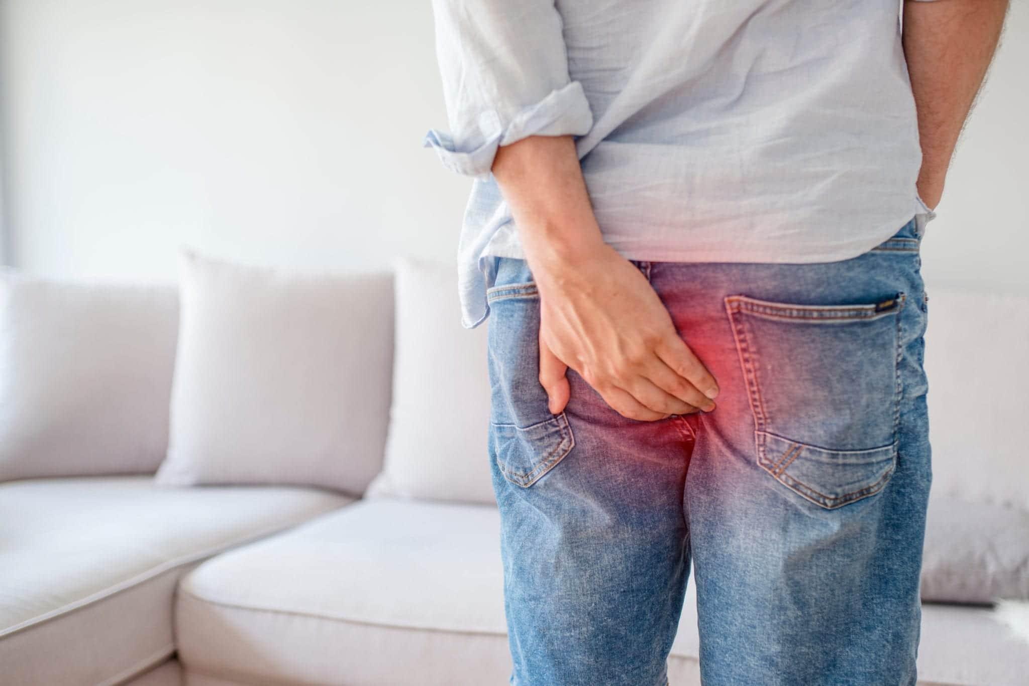 Inchaço, dor e desconforto na região anal são sintomas frequentes das hemorroidas externas.